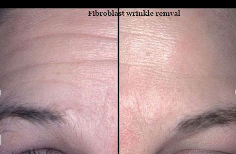 Plasma Fibroblast Skin Tightening Beauty Complexions Clinic